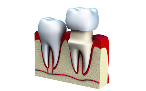 Seven Commonly Asked Questions About Tooth Crowns