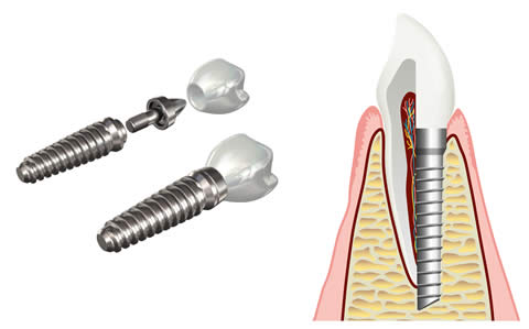 Dental Implants – Three Components
