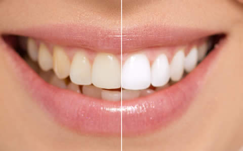 Whiter teeth example