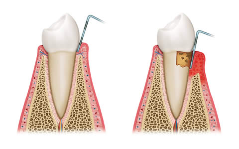 Gum Disease And Health Risks
